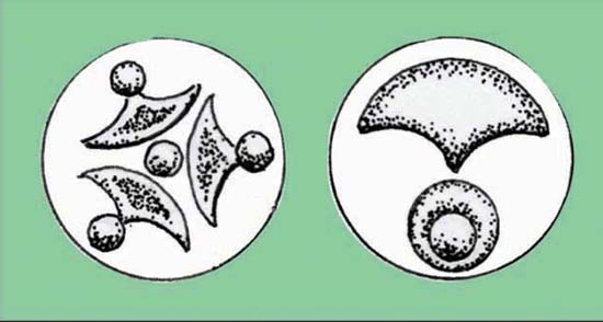 Cusp-and-roundel motifs, like Carl's Crown, on Iceni linchpin terminals from Weeting and Tattersett, Norfolk, c. 1st century BC/AD. Source: Jane Bottomley.